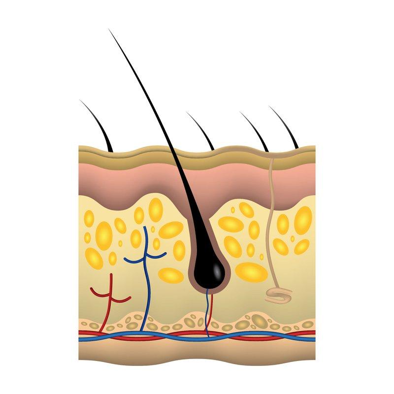 hair follicle black women and hair loss