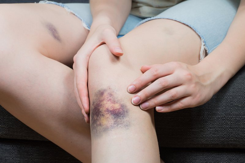 Close up image of female person sitting on sofa and examining wounded leg with hematoma