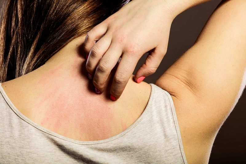 Health problem. Closeup young woman scratching her itchy back with allergy rash