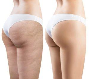 Aanwezigheid van cellulite - afwezigheid van cellulite