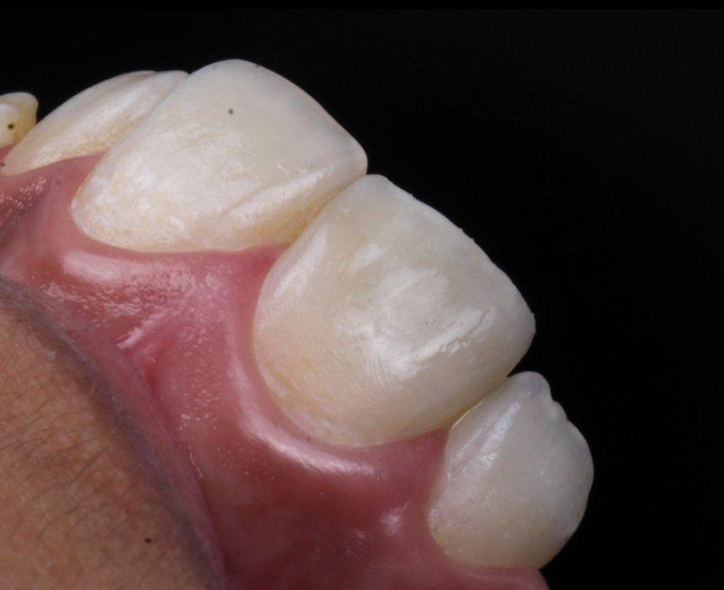 10 DentalReach 84ee7d06f7733abf356c7e2a6b7993c0 800