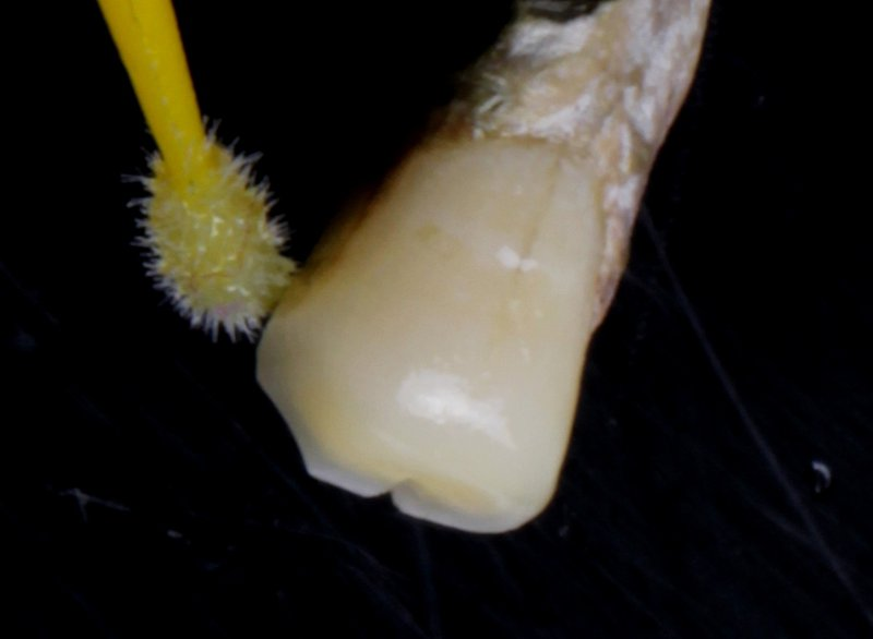14 DentalReach c5b18bdb42b9d5f91cecd797087ccf8a 800