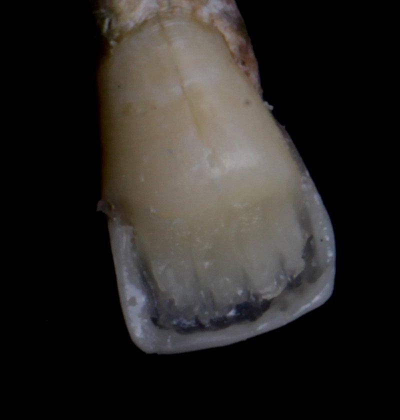 17 DentalReach 1366a5b65656d0a09e814f650f6a7640 800