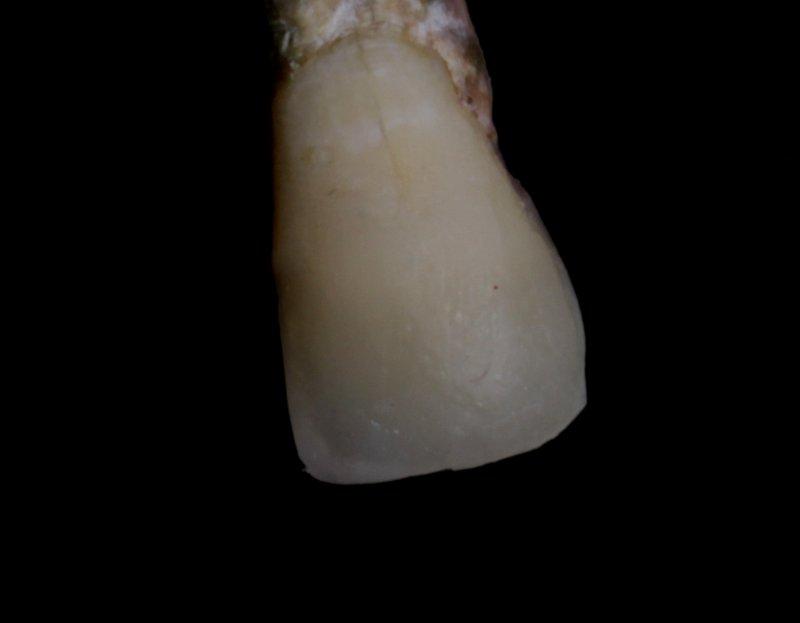 18 DentalReach ea4ece8d183d5f19fe3f70f81639fc59 800