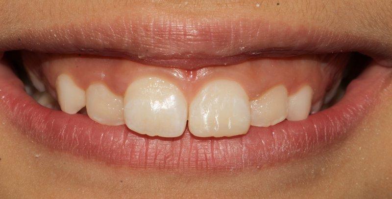 1 Dentalreach cacbf96a3a73df87c4ebf4a8dd1a2124 800