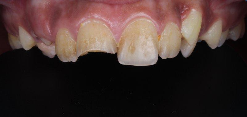 6 DentalReach 6ac8199c35e226c52c5fcaa5816abcf0 800