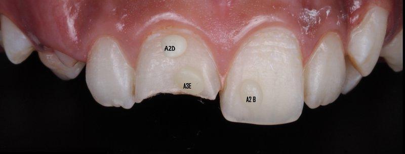 8 DentalReach 8c3064e997e181043af5615b67a5b784 800