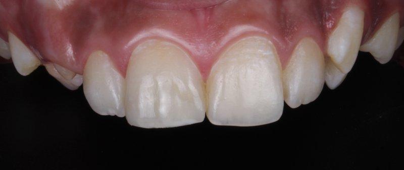 9 DentalReach b4485fe2a6ddc345864c3a2051b6afa8 800