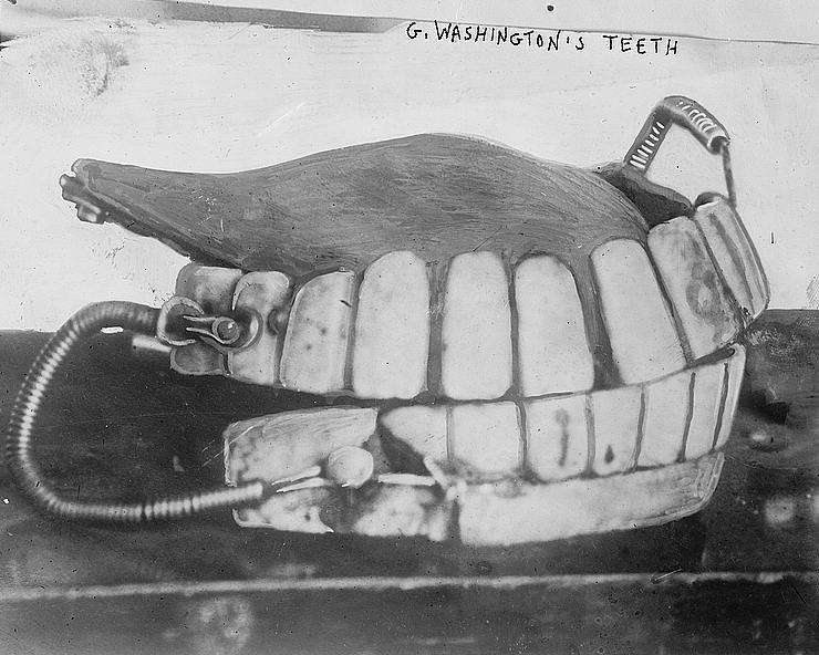 GWashingtons teeth cropped 25ba75796da4f42b7e951351b654e144 800