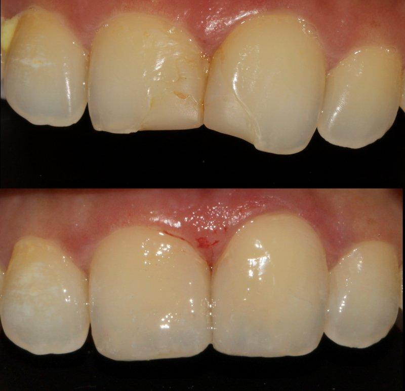 dentalreach2and3merged 367cc9c00d97bb8787e96487f3a9fae5 800