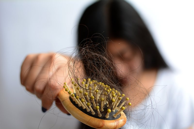 Young woman having serious hair loss, hair fall everyday because of stress