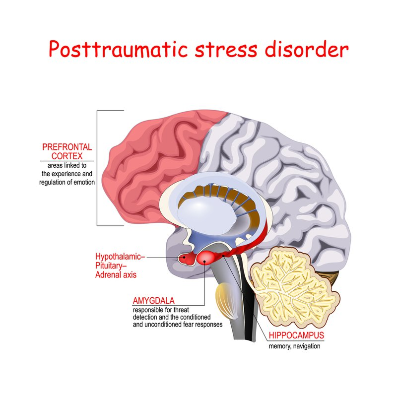 Posttraumatic stress disorder is a mental disorder. Humans brain with Regions of the brain associated with stress and PTSD.