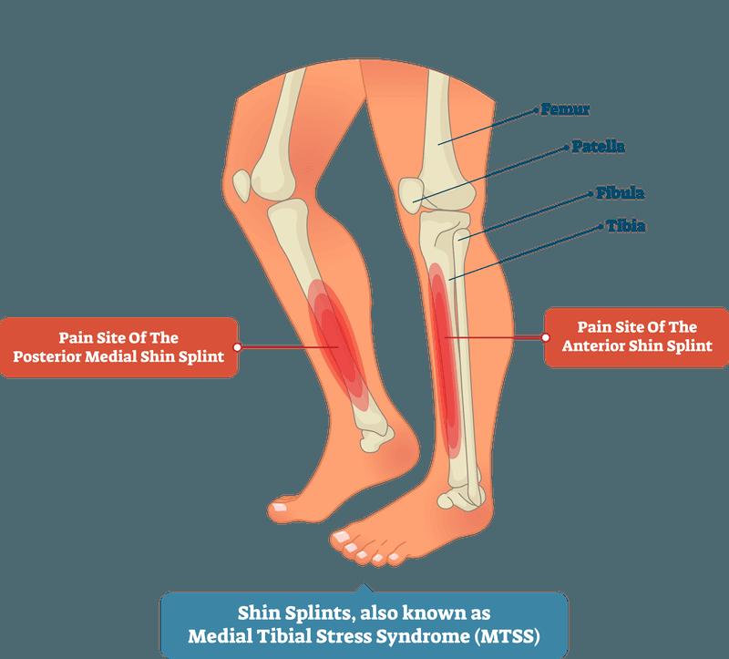 shin splints known as medial tibial stress syndorome