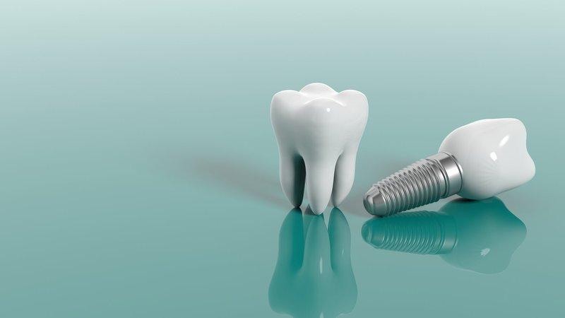 mini implants dental ce course