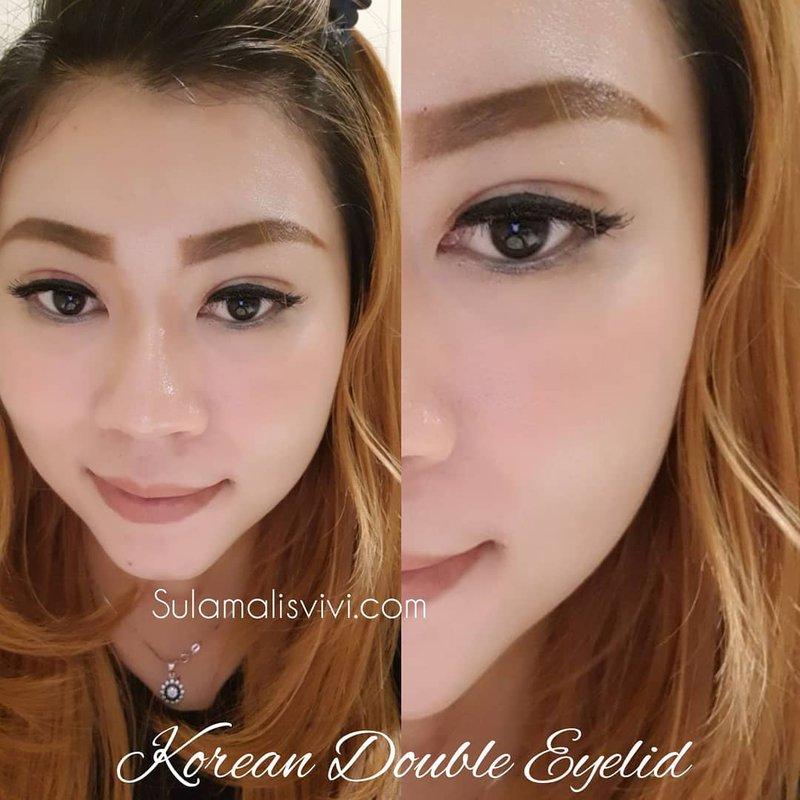 Inst image1 953813dcf205ada995432da1ecd81688 800 - Korea Double eyelid tanpa operasi