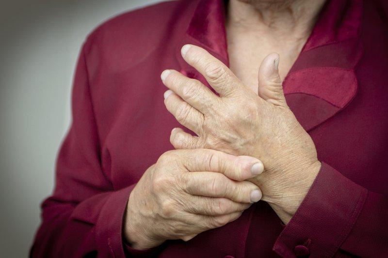 rheumatoid arthritis - anti-inflammatory