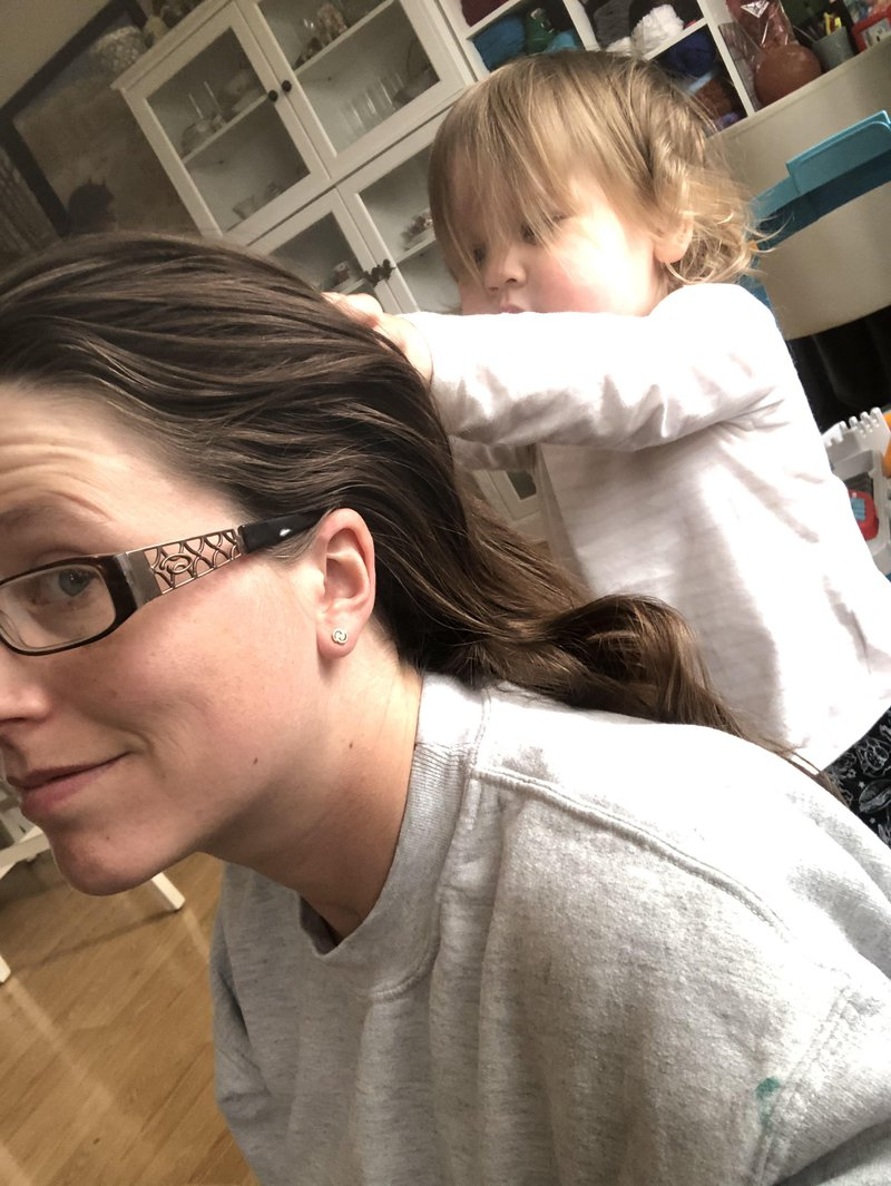 hair loss postpartum mom life toddler body image