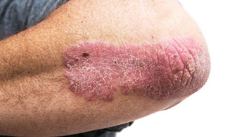 Psoriasis on elbow 65be19cf1981135dfac259164e773edf 800